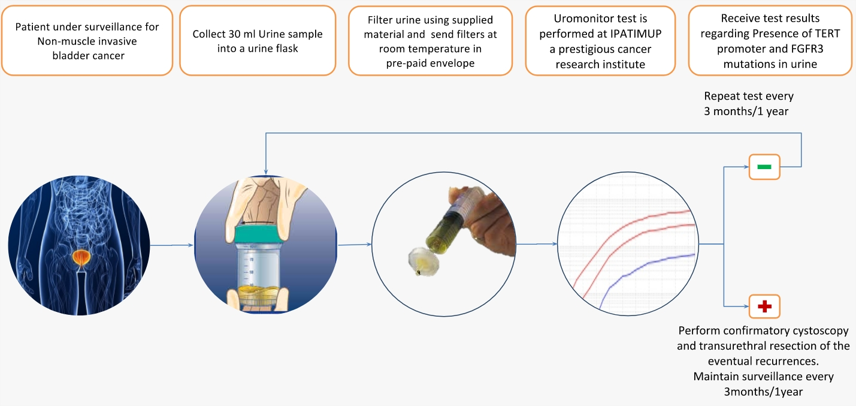 Uromonitor – Non invasive bladder cancer detection method